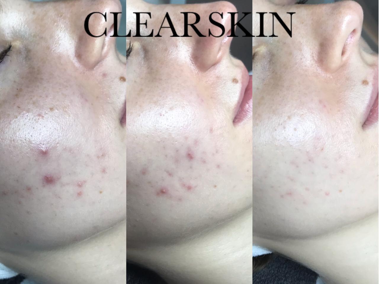 Acne resultaat van Clearskin huidinstituut en acne instituut