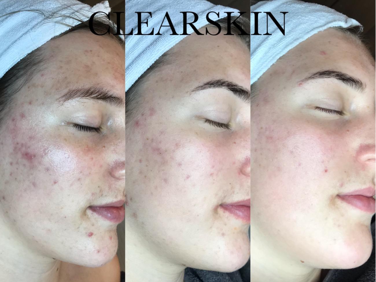 Acne littekens resultaat fotos