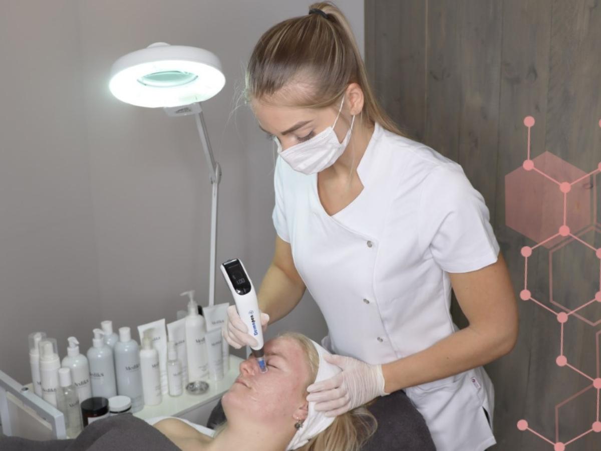 Microneedling behandeling met de dermapen bij Clearskin huidinstituut en acne instituut