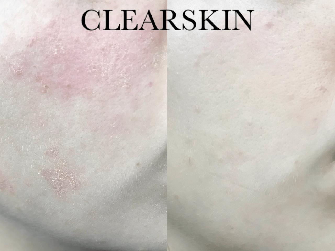 Eczeem resultaat van Clearskin huidinstituut en acne institu
