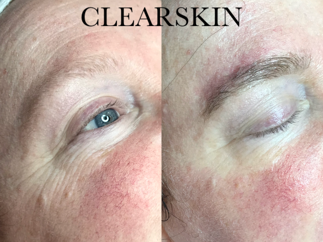 Rimpels resultaat van Clearskin huidinstituut en acne instituut