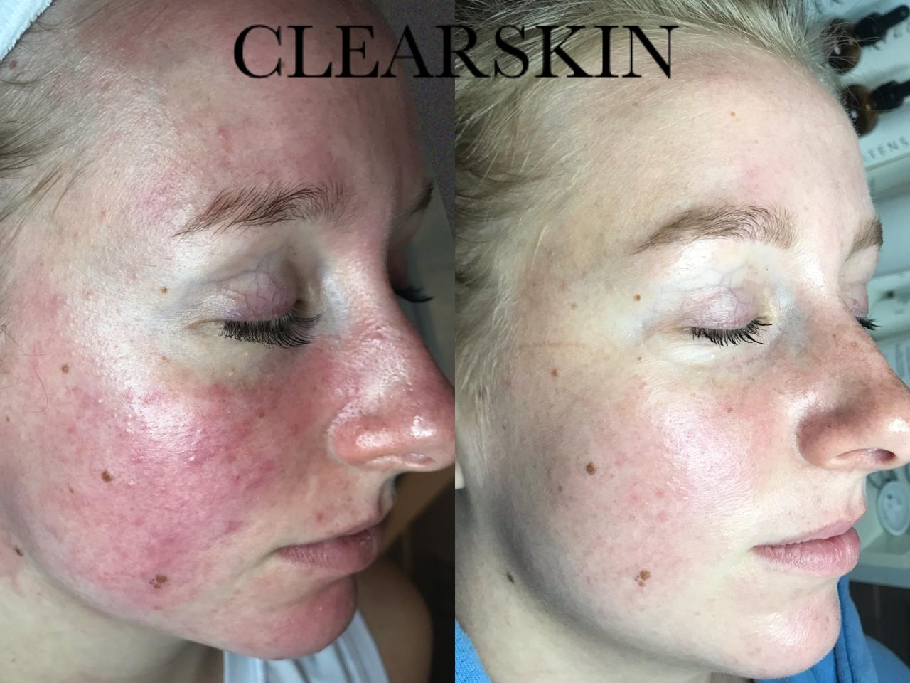 Roodheid en rosacea resultaat van Clearskin huidinstituut en acne instituut